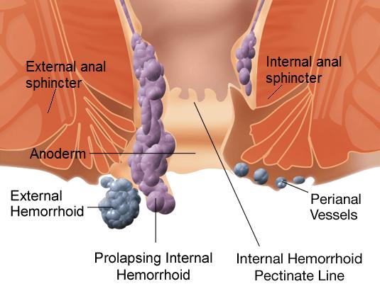 Αιμορροΐδες ανατομία