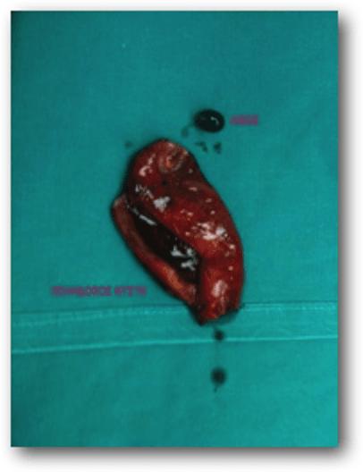 χολή με πετρες χειρουργείο