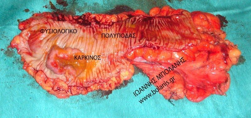Πολύποδας εντέρου