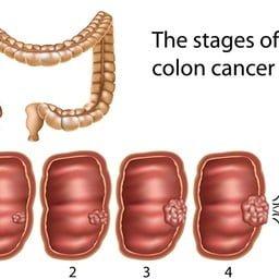 Καρκίνος εντέρου - ορθού