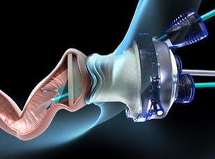 Διαπρωκτικη ενδοσκοπικη χειρουργικη