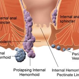 Αιμορροΐδες