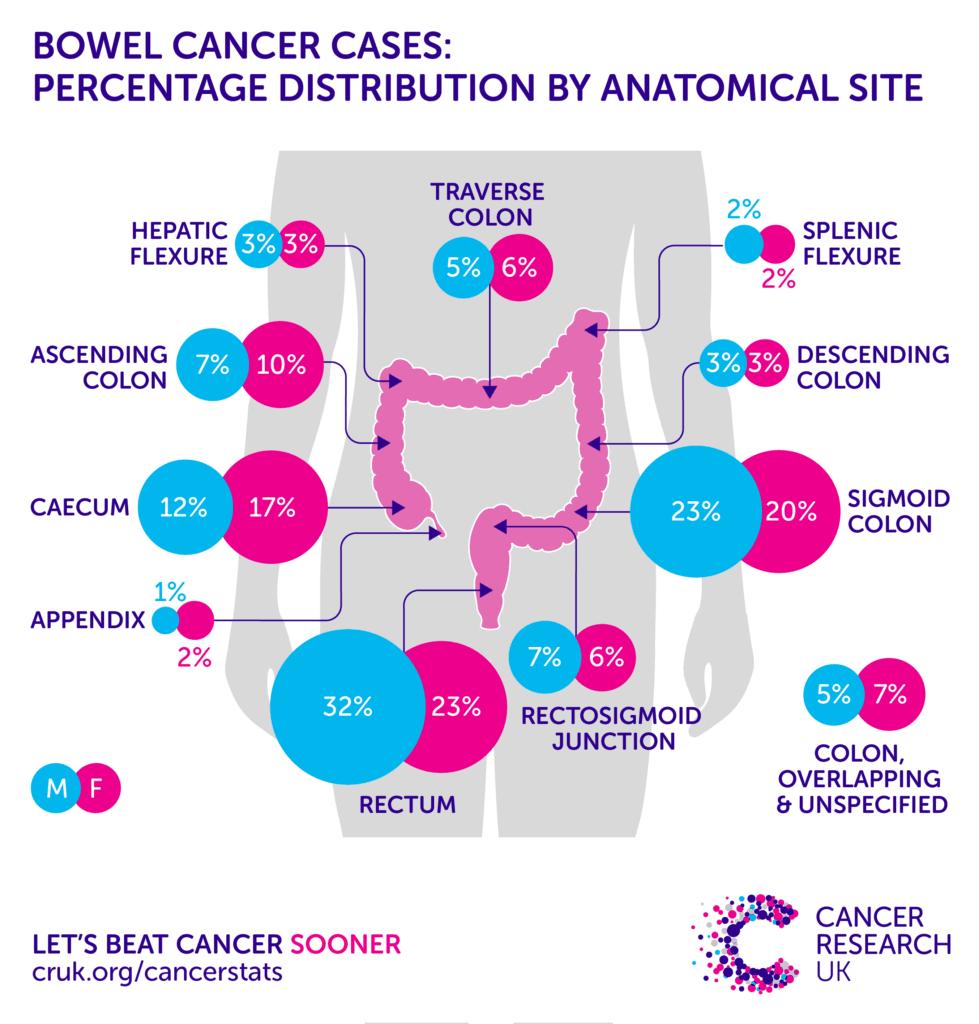 Καρκίνος παχέος εντέρου - εντόπιση