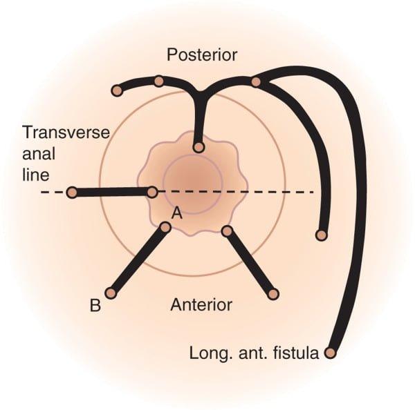 Απλά και σύνθετα συρίγγια, ευθεία, πεταλοειδή