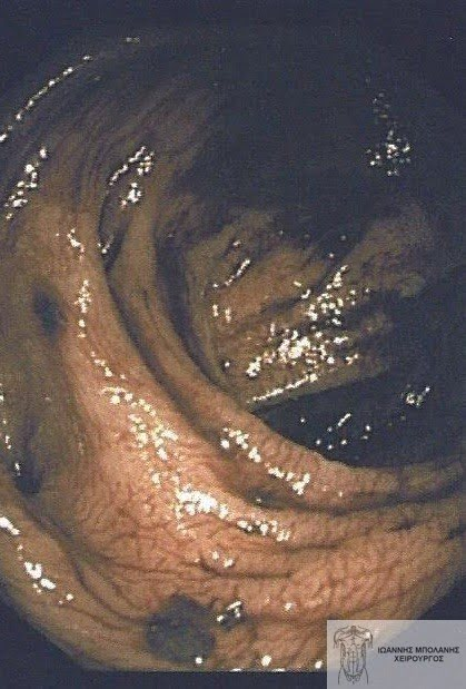 Εκκολπώματα αιμορραγία