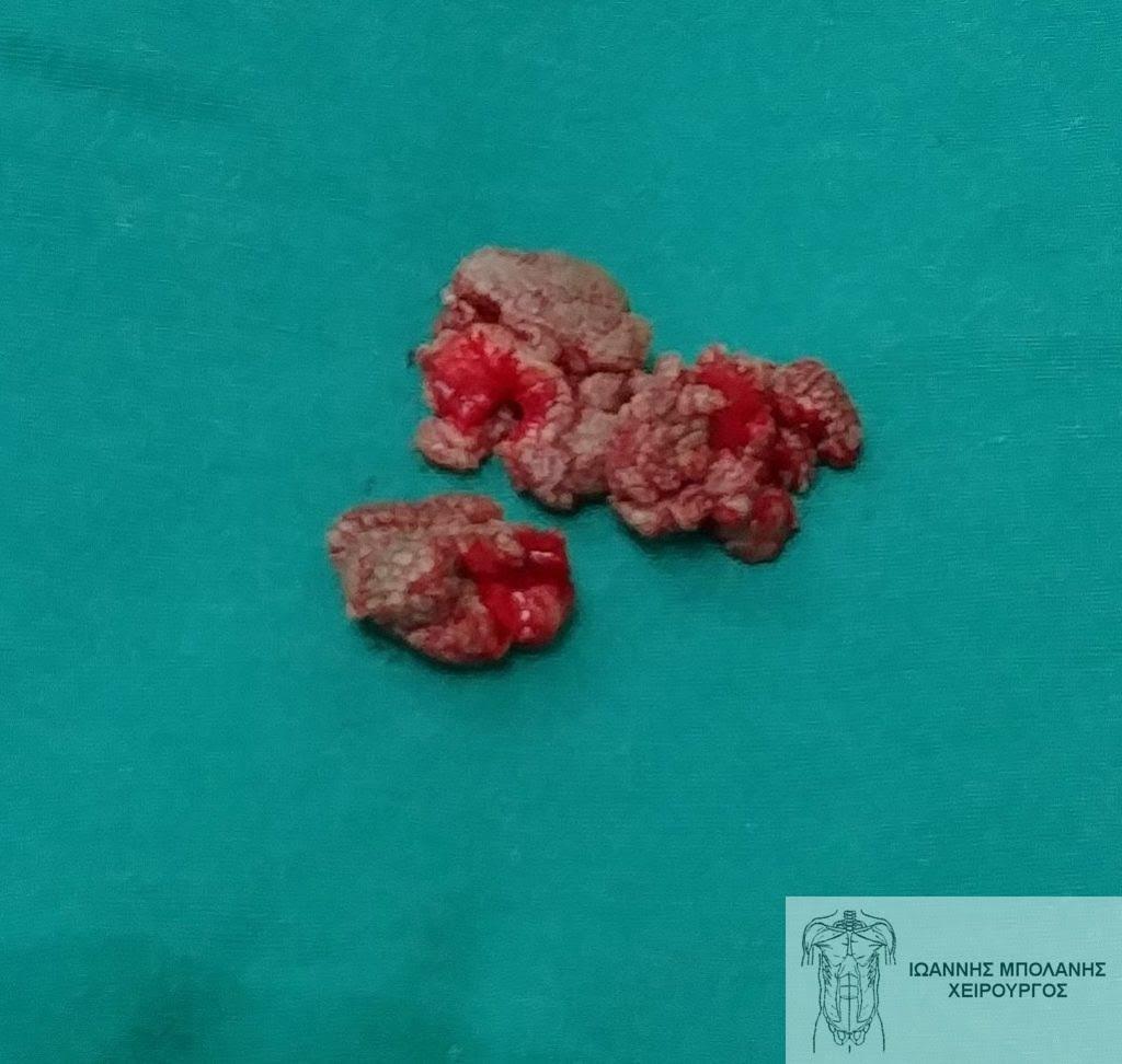 Μεγάλα κονδυλώματα πρωκτού χειρουργική αφαίρεση και βιοψία