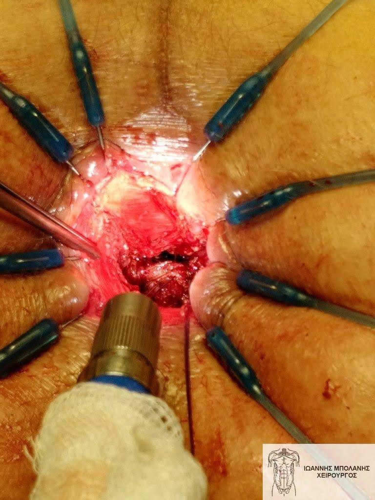 Η τρύπα του συριγγίου όπως την βλέπουμε διαπρωκτικά